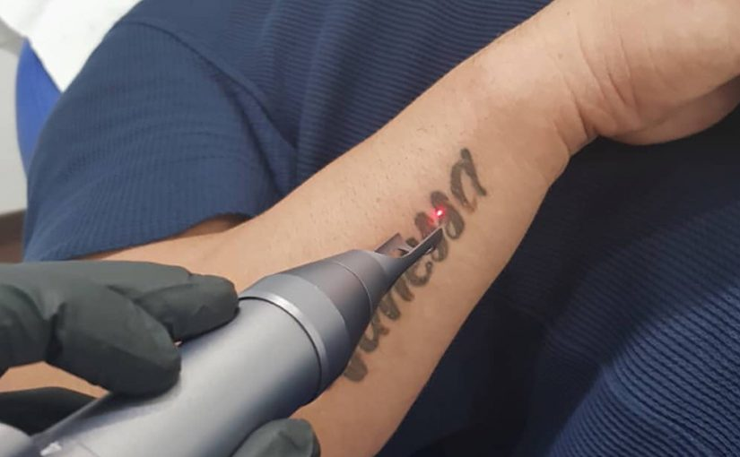 buying a laser tattoo removal machine