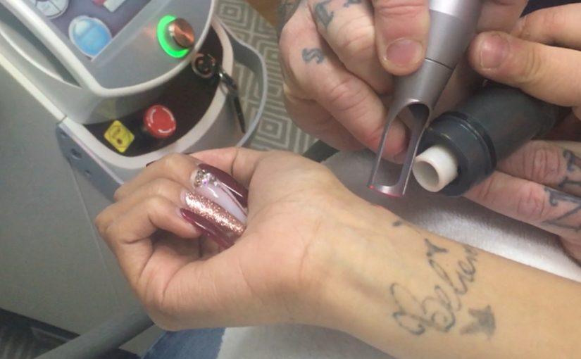 Tattoo removal 2019