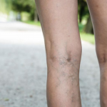 Understanding Spider Veins Laser Treatment