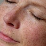 A Special Focus on Pigmented Lesions Laser Treatment
