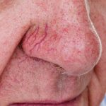 Causes and Treatment of Broken Blood Vessels in the Face