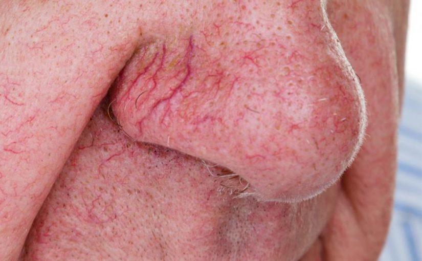 blood vessel laser treatment