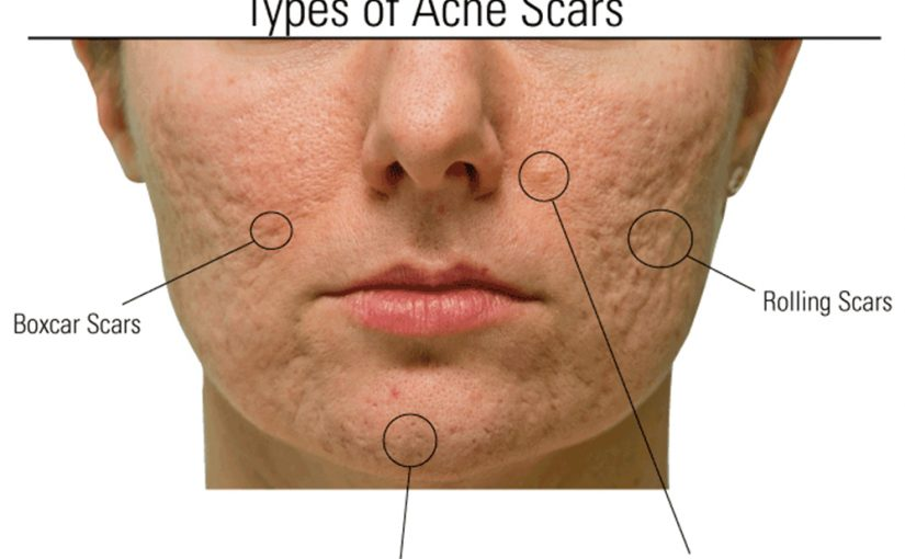 acne scar laser treatment